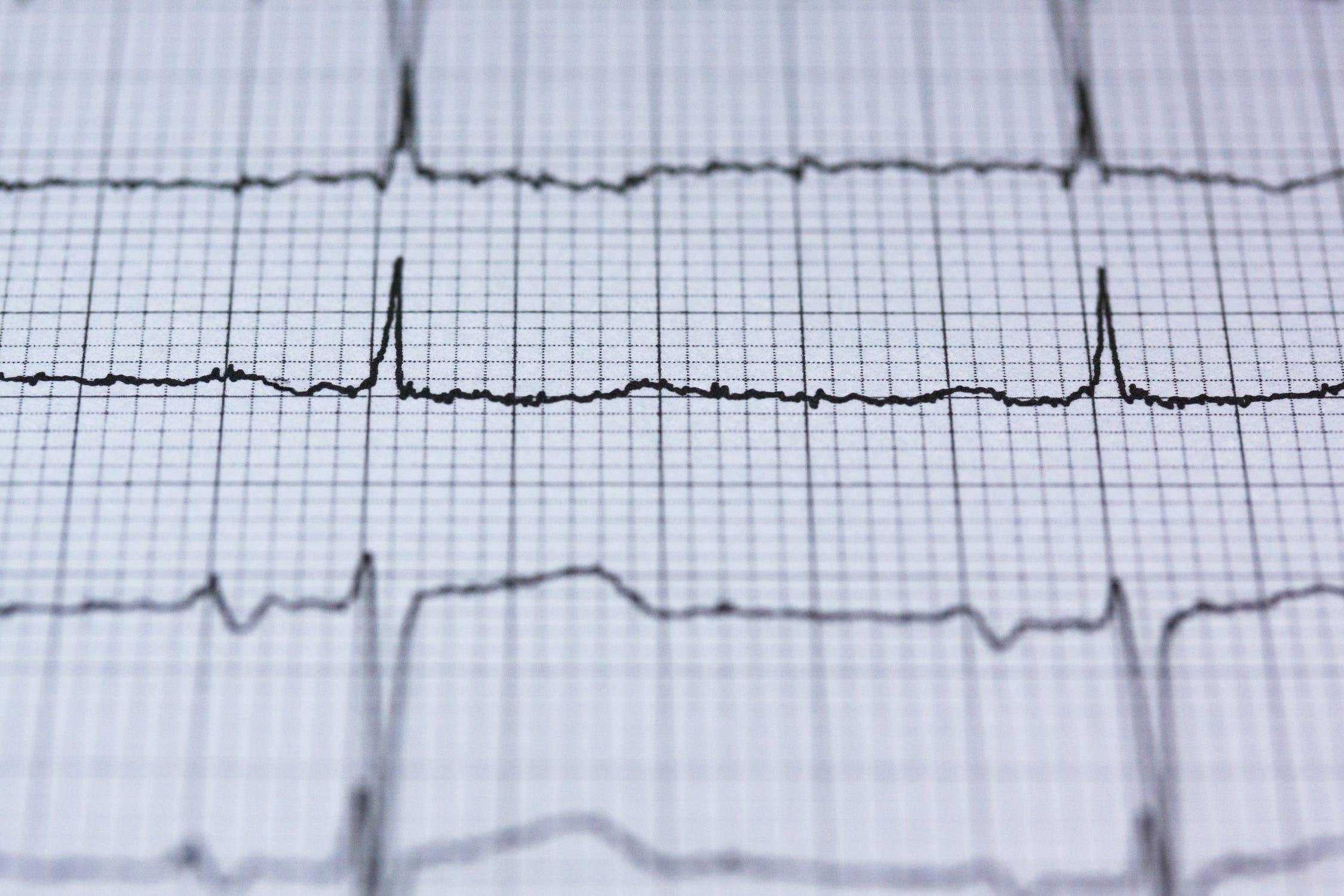 心电图能检查出身体什么病,心电图检查临床意义
